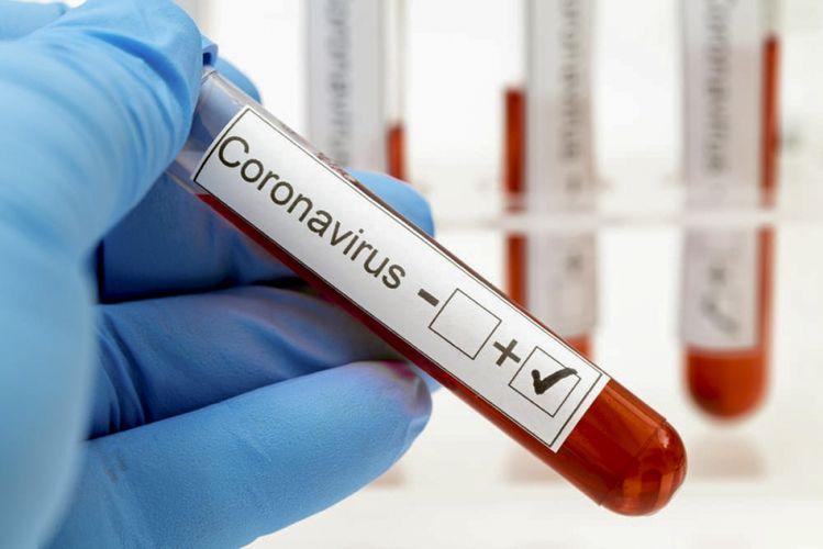 Gürcüstanda daha 36 nəfər koronavirusdan ölüb